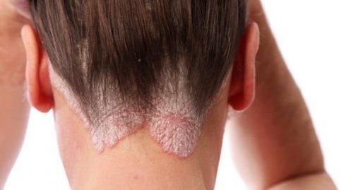 皮肤病银屑病有什么可以预防