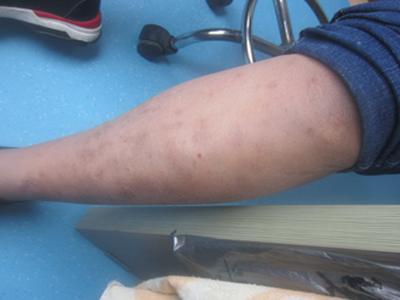 寻常型牛皮癣初期症状有哪些特点