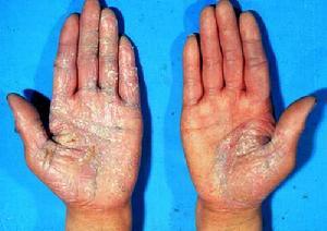 冬季手部牛皮癣护理注意事项?