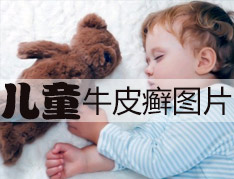 儿童如何预防牛皮癣发生