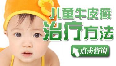 幼儿牛皮癣的治疗方法是什么?